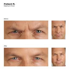 botox-before-and-after-male-1050
