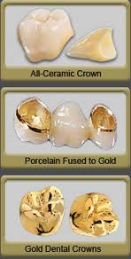 3-types-of-dental-crowns