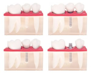 implant in new westminster