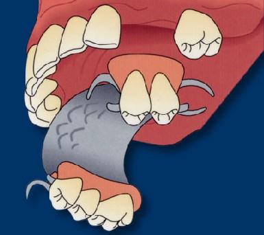 removable-partial-denture-top