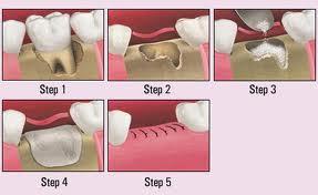 bone-grafting