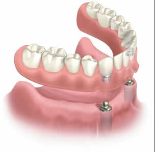 implant-supported-denture-lower