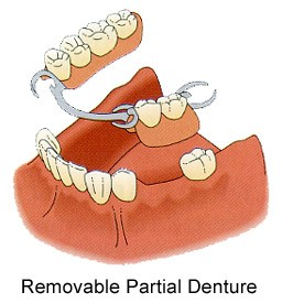 removable-partial-dentures