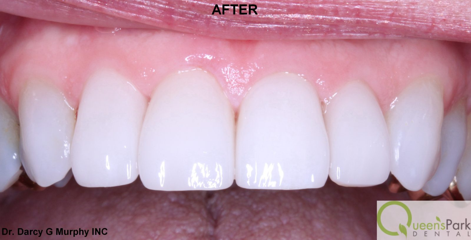 new westminster veneers