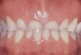damaged-teeth-from-grinding